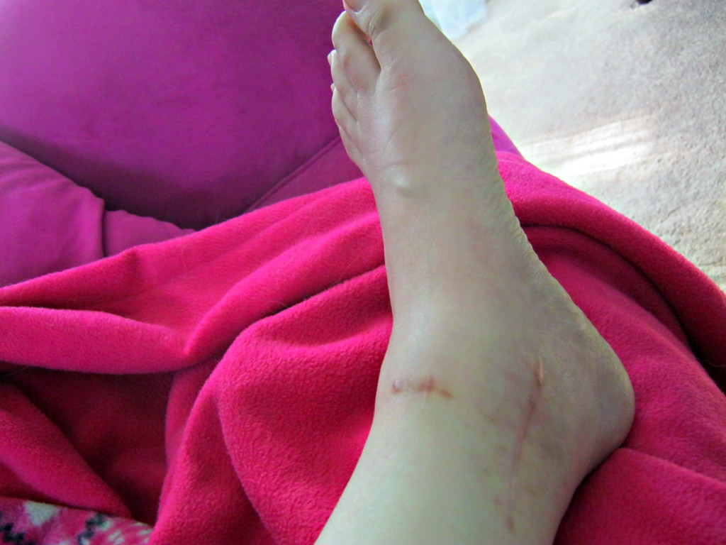 ankle right side with scars
