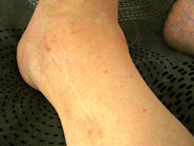 Scar on outside of left ankle (plate and 6 screws)