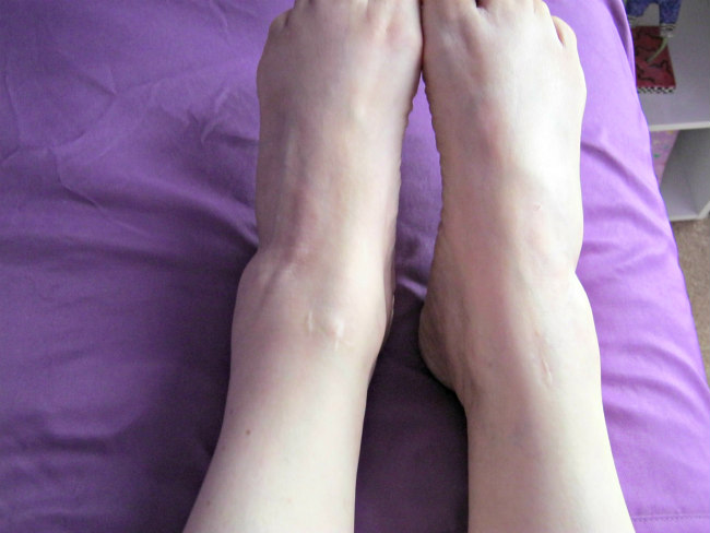 comparing left and right ankles after orif surgery